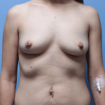 Patient 61a Before Breast Augmentation