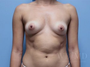 Patient 60a Before Breast Augmentation