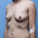 Patient 61b Before Breast Augmentation