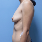 Patient 61c Before Breast Augmentation