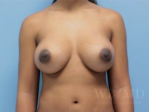 Patient 58a After Breast Augmentation
