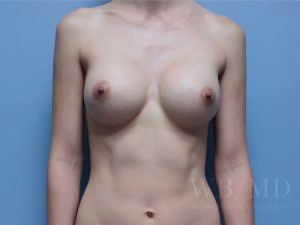 Patient 57a After Breast Augmentation