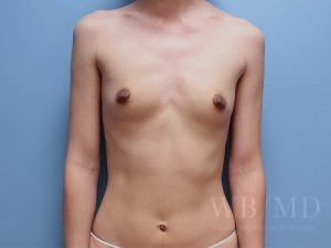 Patient 57a Before Breast Augmentation