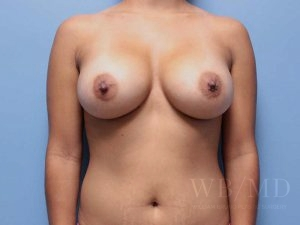 Patient 64a After Breast Augmentation