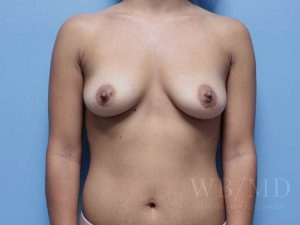 Patient 64a Before Breast Augmentation