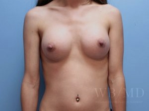 Patient 62a After Breast Augmentation