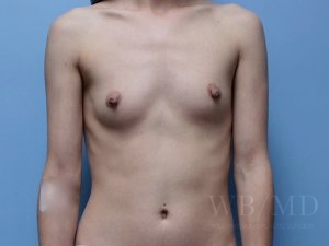 Patient 62a Before Breast Augmentation