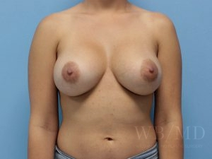 Patient 63a After Breast Augmentation