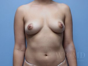 Patient 63a Before Breast Augmentation