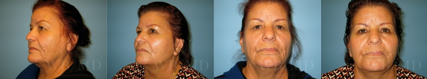 facelift-beverly-hills